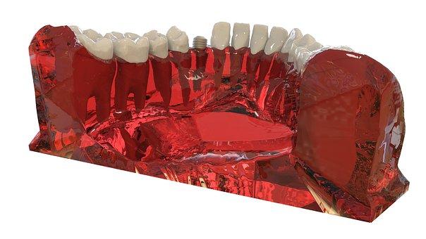 Teeth, Jaw, 3d Model