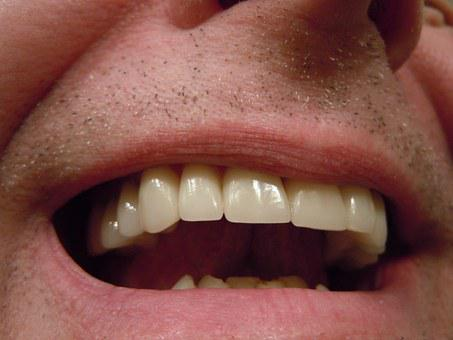 Teeth, Dental, Tooth, Mouth, Lips, Crowns, Caps