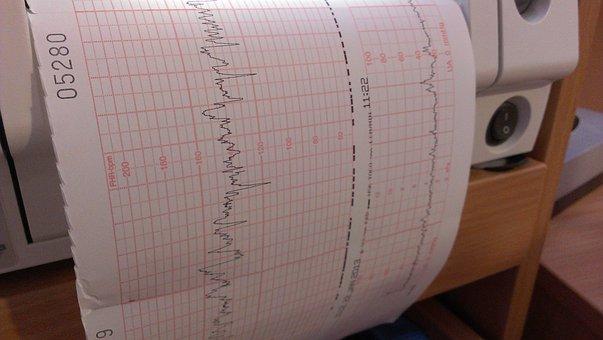 Doppler Ultrasound, Investigation, Chart, Evaluation