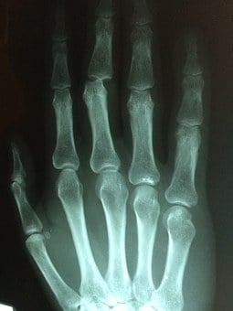Hand, Fracture, Broken, Injury, Pain, Patient, Medicine