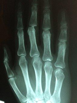 Hand, Fracture, Broken, Injury, Pain, Patient, Medicine