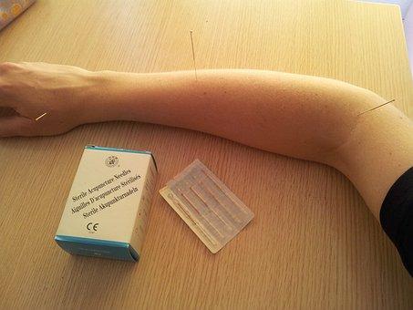 Acupuncture, Acupuncture Needles