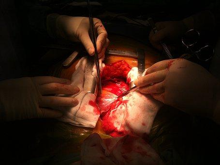 Operation, Open, Heart, Surgery, Medicine, Human