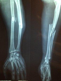 Fracture Bone, Xray, Skeleton, Diagnosis, Broken
