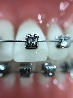 Zoom, Orthodontics, Iphone