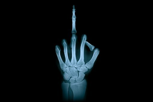 Hand, Middle Finger, X-ray Radiation, Finger Gesture