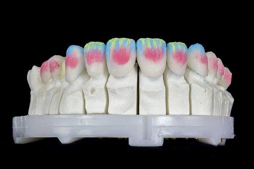 Prosthesis, Dental, Contact Lenses, Lenses Dental