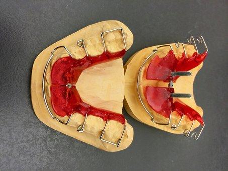 Orthodontics, Dental Braces, Plaster Model, Dentistry