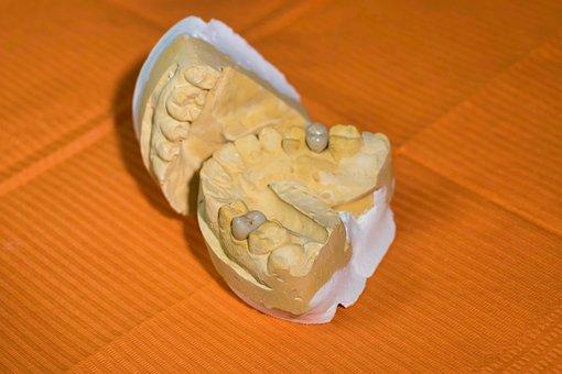 Mold, Dental, Dentist, Teeth, Molar, Reconstruction