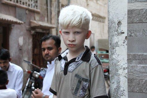 Albino, White, Asian, Albinism, Skin, Boy