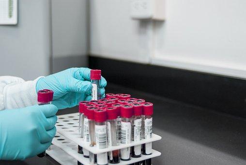 Lab, Experiment, Test, Chemistry, Test Tubes
