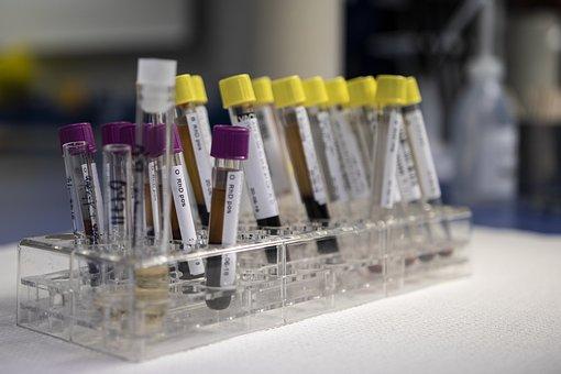 Blood, Analysis, Laboratory, Test, Medical, Tests