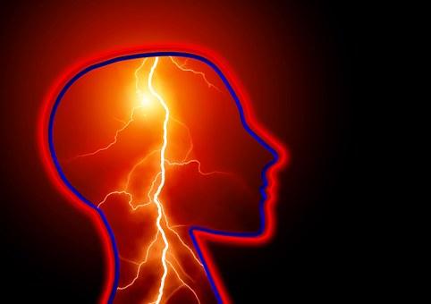Epilepsy, Seizure, Stroke, Headache