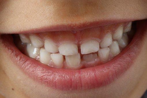 Teeth, Child Smile, Child, Dental, Smile Teeth, Tooth