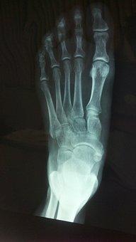 X Ray, Foot, Bone