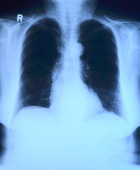 X Ray Image, X Ray, Thorax, Lung X-ray, Medical