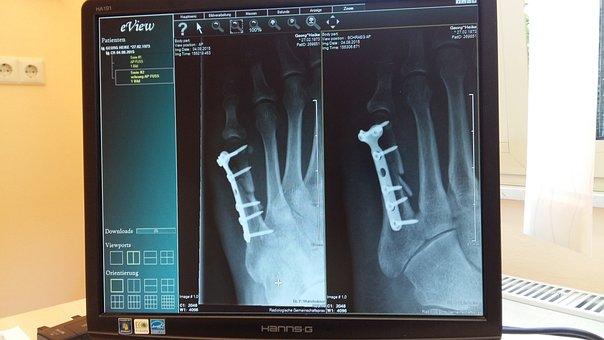 X Ray, X Ray Image, Clinic, Medical, Hospital, Heal