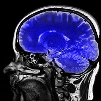 Head, Magnetic Resonance Imaging, Mrt, X Ray