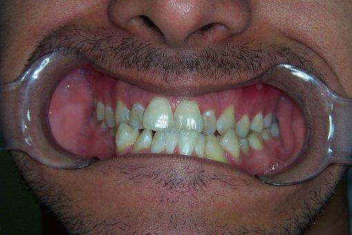 Crooked, Teeth, Crooked Teeth, Braces, Orthodontics