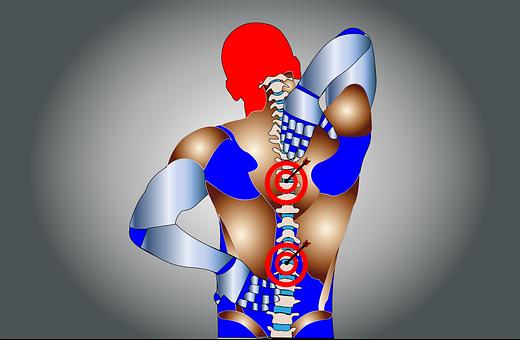Back Pain, Pain, Spine, Body, Ache