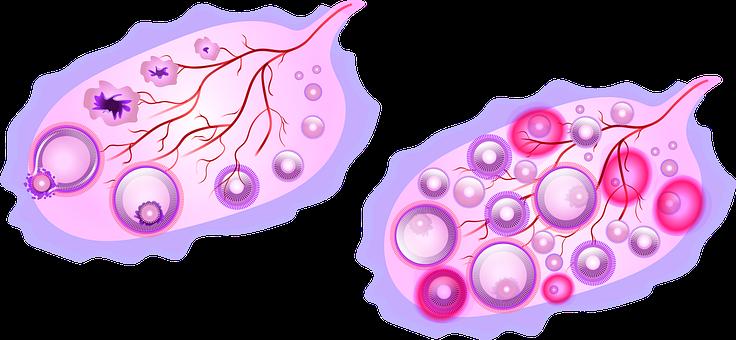 Ovary, Utero, Uterus, Polycystic Ovary
