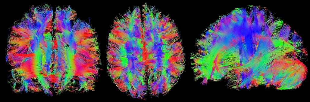 Brain, Mrt, Magnetic Resonance Imaging, Head
