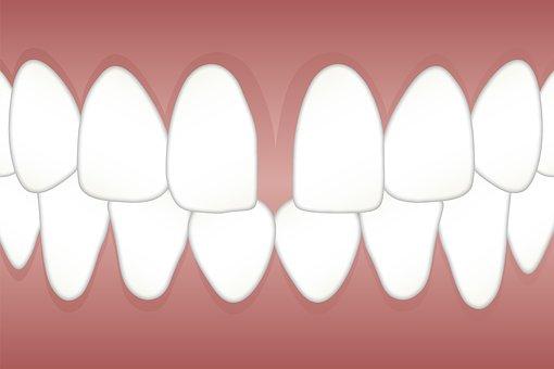 Dental, Diastema, Space, Gap, Teeth, Tooth, Dentist
