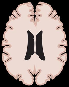 Graphic, Brain, Horizontal Brain, Mri, Ms, Brain Scan