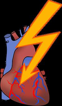 Arrhythmia, Heart Attack, Cardiac, Coronary, Health