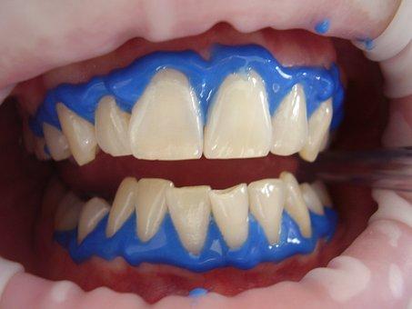 Laser Teeth Whitening, Dental, Whitening, Laser