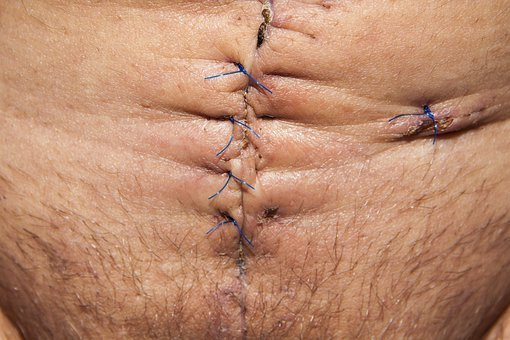 Op, Operation, Abdomen Surgery, Surgical Scar, Scar