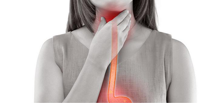 Achalasia, Achalasia Causes, Achalasia Symptoms