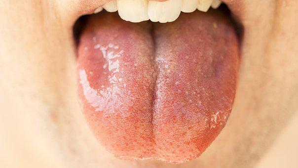 Tongue, Organ, Mouth, Taste, Senses, Papillae, Filiform