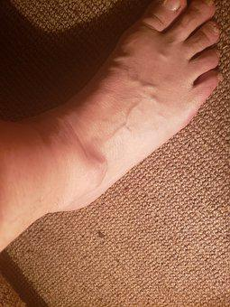 Ankle, Ganglion, Cyst, Injury
