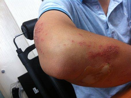 Injury, Arm, Injured, Hurt, Man, Elbow, Pain, Bandage