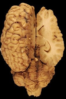 Brain, Anatomy, Horse, Biology, Dorsal, Body
