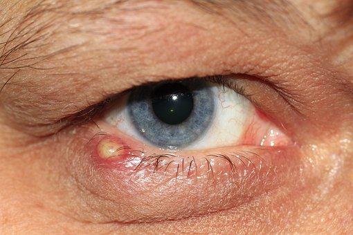 Barley Grain, Eye, Lid, Pus, Eyelashes, Iris, Blue