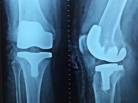 Doctor, Orthopedics, X-ray, Knee