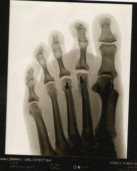 Foot, Xray, Skeleton, Anatomy, Bone