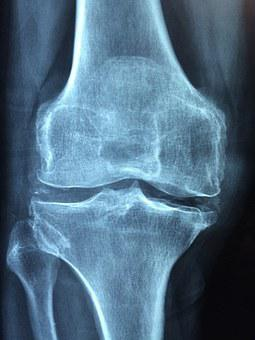 Knee, Old, Care, Injury, Pain, Knee Pain, Inflammation