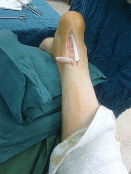 Achilles, Tendon, Rupture, Medicine, Anatomy, Injury