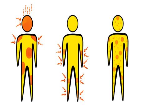 Symptoms, Aedes Aegypti, Disease, Dengue Fever, Zika