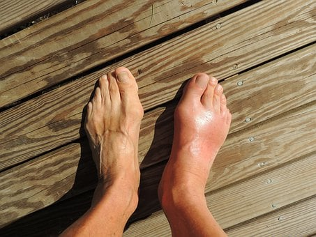 Feet, Gout, Pain, Foot, Human, Anomaly, Barefoot