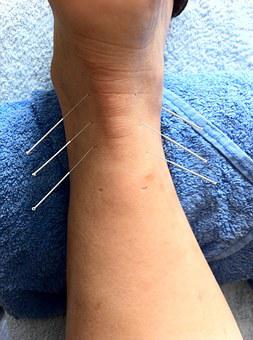 Acupuncture, Sport Injury, Sports Massage, Alternative
