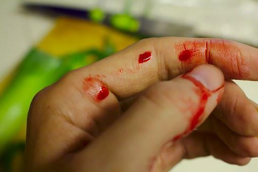 Accident, Bleed, Bleeding, Bleeding Finger, Blood