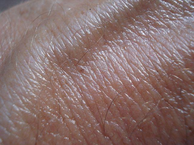 Skin, Vein, Brown, Skin Cancer, Human