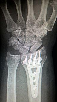 Broken Arm, Plate Fixation, Titanium Plate