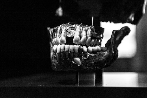 Tooth, Bone, Skull, Old, Black And White, Dental, Mouth