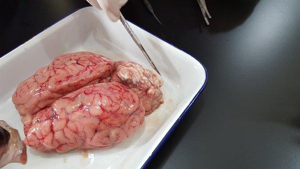 Brain, Organ, Experiment, Lab