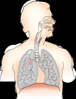 Cancer, Carcinoma, Metastases, Airway, Health, Illness